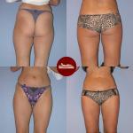 23-letnia pacjentka przed i 3 miesiące po liposuction bioder i ud.